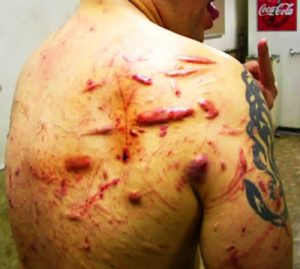 Jun Kasai's back is disgusting, bearing the scars from hundreds of deathmatches